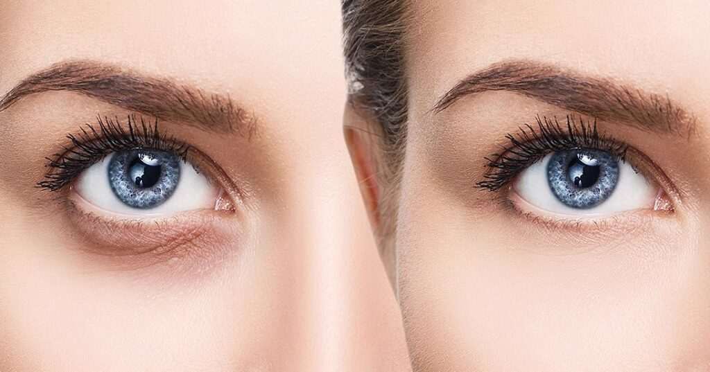 Reviewers Are Shocked by How Well This $10 Eye Cream Works